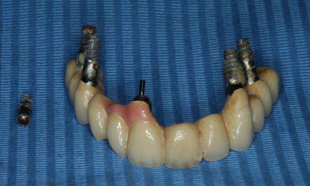 Implantat behandling i utlandet? Tenk deg godt om !